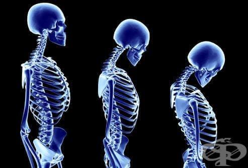 Инактивитетна остеопороза с патологична фрактура МКБ M80.2 - изображение