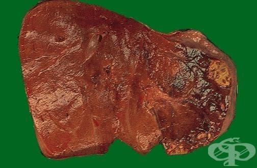 Инфаркт на черния дроб МКБ K76.3 - изображение