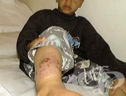 Инфекциозен дерматит МКБ L30.3 - изображение