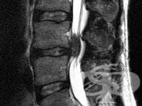 Инфекция на междупрешленния диск (пиогенна) МКБ M46.3 - изображение
