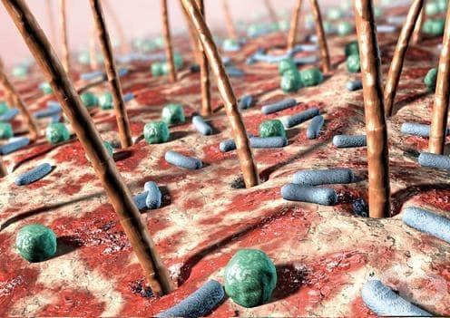 Инфекции на кожата и подкожната тъкан МКБ L00-L08 - изображение