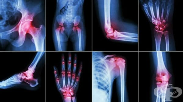 Инфекциозни артропатии МКБ M00-M03 - изображение