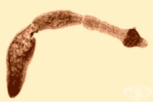 Инвазия, предизвикана от Echinococcus multilocularis, неуточнена МКБ B67.7 - изображение