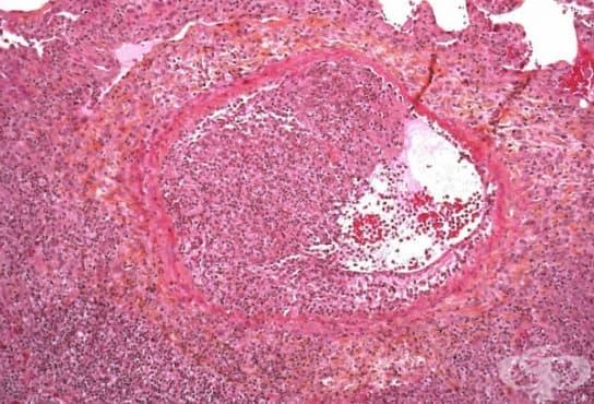 Инвазивна белодробна аспергилоза МКБ B44.0 - изображение