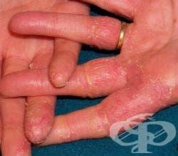 Иритативен контактен дерматит МКБ L24 - изображение