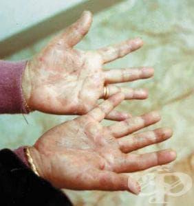 Иритативен контактен дерматит от детергенти МКБ L24.0 - изображение