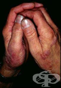 Иритативен контактен дерматит от масла и мазнини МКБ L24.1 - изображение
