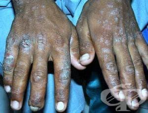 Иритативен контактен дерматит от други химични продукти МКБ L24.5 - изображение