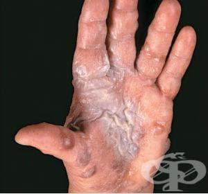 Иритативен контактен дерматит от разтворители МКБ L24.2 - изображение