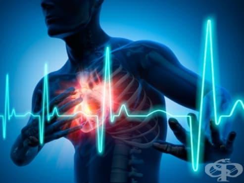 Исхемична болест на сърцето МКБ I20-I25 - изображение