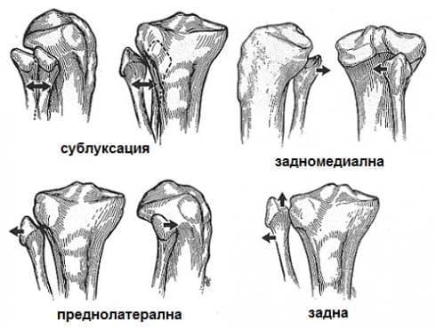 Изкълчване на коляното МКБ S83.1 - изображение