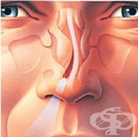 Изкълчване на хрущялната част на носната преграда МКБ S03.1 - изображение