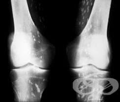 Калцификация и осификация  в мускулите МКБ M61 - изображение