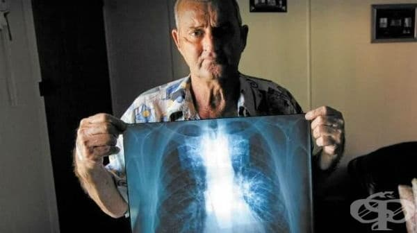 Ревматоидна болест със засягане на белия дроб (J99.0*) МКБ M05.1 - изображение