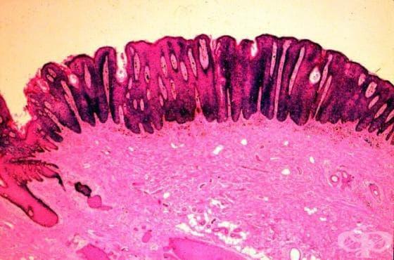 Карцином in situ на кожа, с неуточнена локализация МКБ D04.9 - изображение