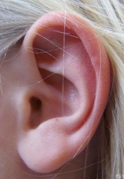 Карцином in situ на кожата на ухото и външния слухов канал МКБ D04.2 - изображение