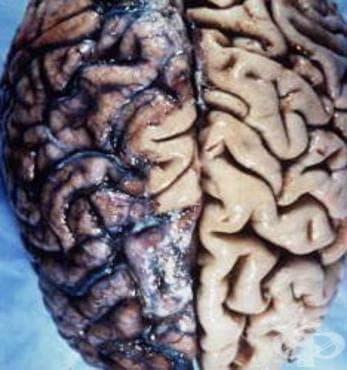 Късен вроден невросифилис [ювенилен невросифилис] МКБ A50.4 - изображение