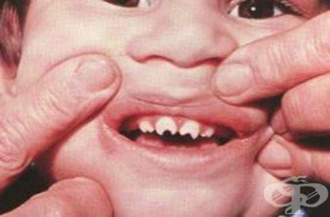 Късен вроден сифилис, неуточнен МКБ A50.7 - изображение