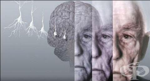 Късна болест на Алцхаймер МКБ G30.1 - изображение