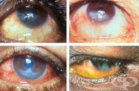 Късно вродено сифилитично увреждане на очите МКБ A50.3 - изображение