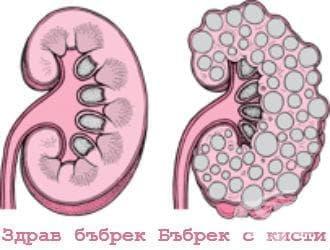 Кистозна болест на бъбрека МКБ Q61 - изображение