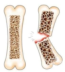 Нарушения в плътността и структурата на костта МКБ M80-M85 - изображение