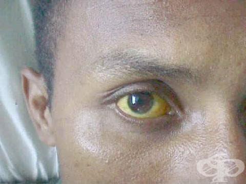 Лептоспироза иктеро-хеморагична МКБ A27.0 - изображение