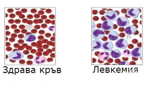 Левкемия с неуточнен клетъчен тип МКБ C95 - изображение