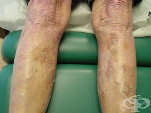 Периферни и кожни Т-клетъчни лимфоми МКБ C84 - изображение