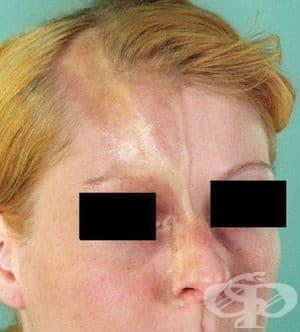 Линеарна склеродермия МКБ L94.1 - изображение