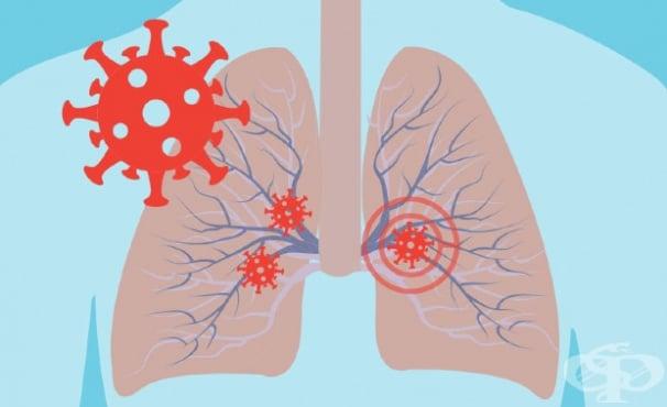Грип и пневмония МКБ J10-J18 - изображение