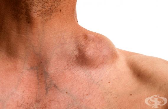 Злокачествени новообразувания на лимфната, кръвотворната и сродните им тъкани МКБ C81-C96 - изображение