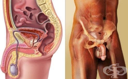 Мъжки полови органи, с неуточнена локализация МКБ C63.9 - изображение