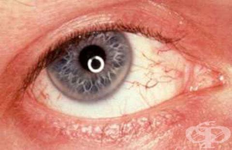 Малкомозъчна атаксия с нарушение във възстановяването на ДНК МКБ G11.3 - изображение