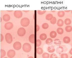 Витамин B12-недоимъчна анемия, причинена от избирателно нарушаване на усвояването на витамин B12 при хранене МКБ D51.1 - изображение