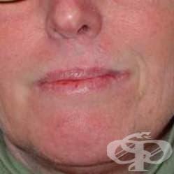 Меланом in situ на устни МКБ D03.0 - изображение