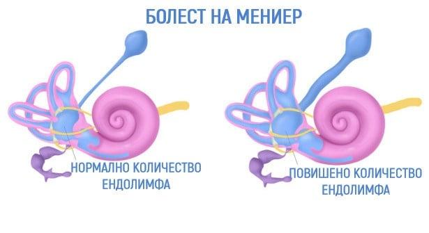 Болест на Meniere МКБ H81.0 - изображение
