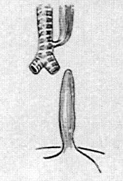 Атрезия на хранопровода с трахеоезофагеална фистула МКБ Q39.1 - изображение
