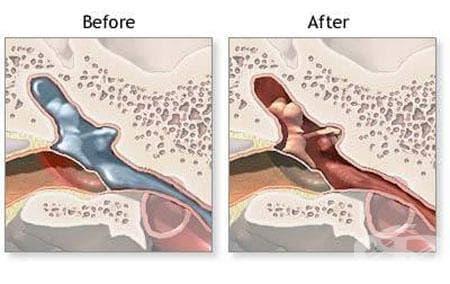 Гнойно и неуточнено възпаление на средното ухо МКБ H66 - изображение