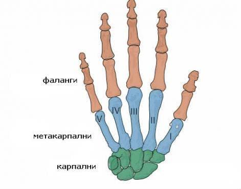 Множествени счупвания на пръсти МКБ S62.7 - изображение
