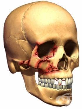 Множествени счупвания на костите на черепа и лицевите кости МКБ S02.7 - изображение