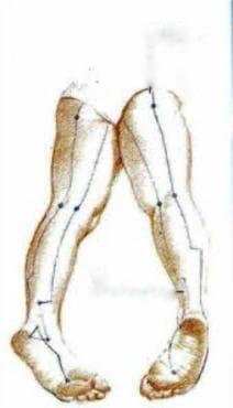 Мононевропатии на долен крайник МКБ G57 - изображение