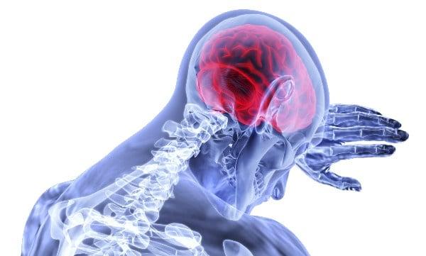 Мозъчен инфаркт МКБ I63 - изображение