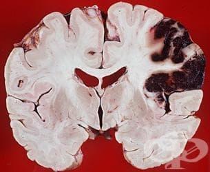 Мозъчен инфаркт, причинен от тромбоза на церебрални артерии МКБ I63.3 - изображение