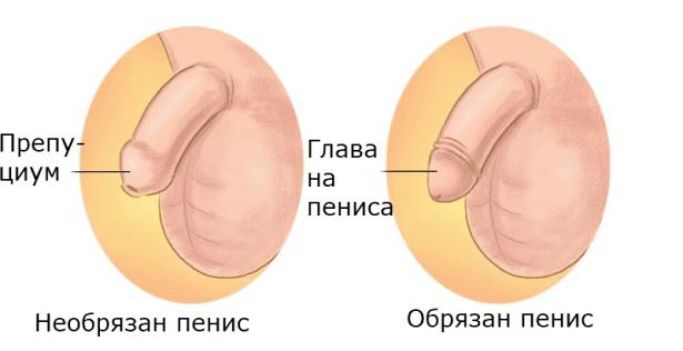 Обикновено или ритуално обрязване МКБ Z41.2 - изображение