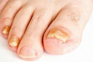 Болест на ноктите, неуточнена МКБ L60.9 - изображение