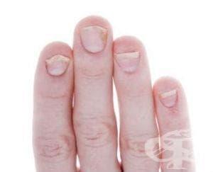 Болести на ноктите МКБ L60 - изображение