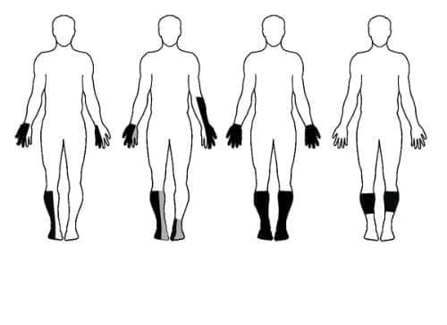 Нарушение на кожната чувствителност МКБ R20 - изображение