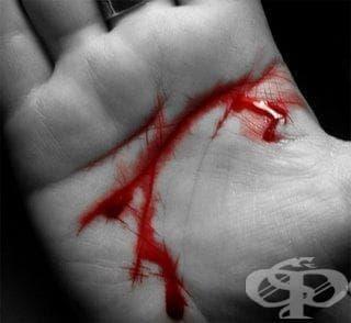 Нарушение на кръвосъсирването, неуточнено МКБ D68.9 - изображение