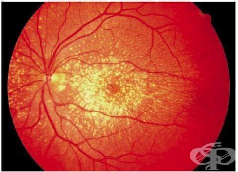 Наследствени ретинални дистрофии МКБ H35.5 - изображение